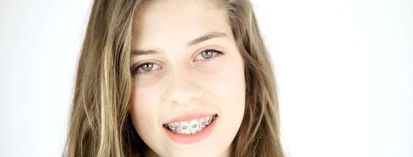 Informationen zur Gratis Zahnspange Wien