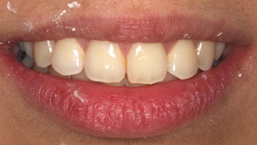 gerade Zähne mit der Zahnspange - nachher