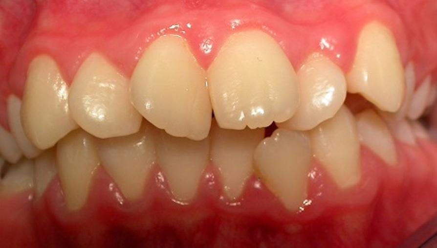 Gerade Zähne mit der Zahnspange - vorher
