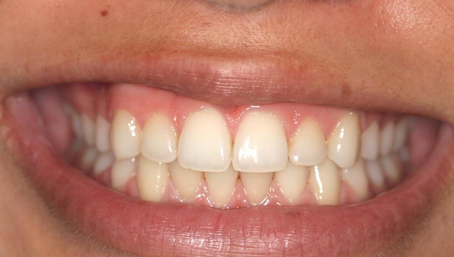 Schöne Zähne mit der Gratis Zahnspange - nachher