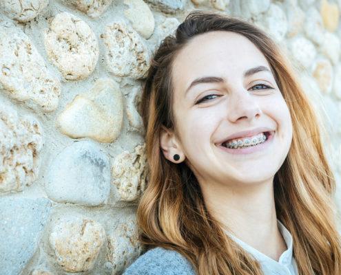 Gerade Zähne mit der Zahnspange