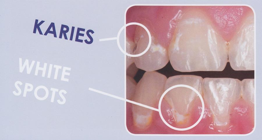 Karies und White Spots Pflege der Zahnspange