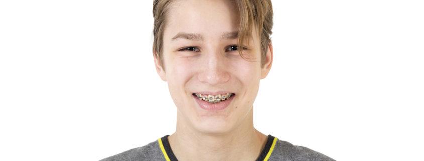 Selbstbewusste Jugendliche Zahnspange schöne Zähne