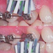 richtig Zähneputzen beim Tragen einer Zahnspange