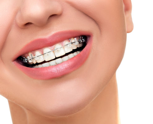Brackets in Zahnfarbe feste Zahnspange